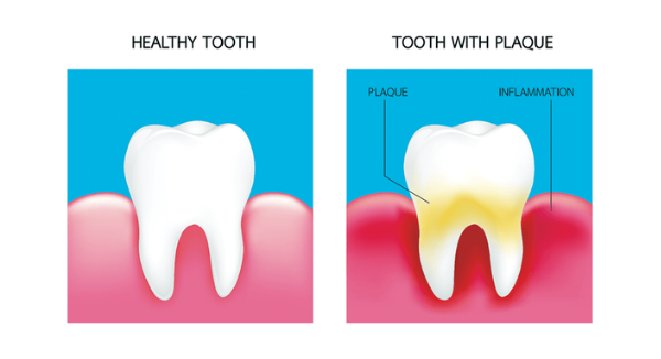 Plaque, Tartar, And Your Teeth